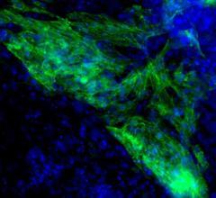 University of Houston, heart muscle cell regeneration, microRNAs, Yu Liu