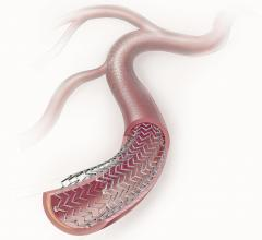 Zilver PTX Randomized Controlled Trial Stents Peripheral artery disease (PAD)