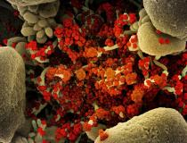 Colorized scanning electron micrograph of an apoptotic cell (tan) heavily infected with SARS-CoV-2 virus particles (orange), isolated from a patient sample. Image captured at the National Institute of Allergy and Infectious Diseases (NIAID) Integrated Research Facility (IRF) in Fort Detrick, Maryland. Photo courtesy of NIAID