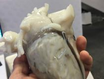 A 3-D printed heart from a patient CT scan used for structural heart procedure planning and education displayed by Materialise. #TCT2019 #TCT #TCT19