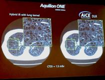 Vendors are developing new AI algorithms to reconstruct CT images better than conventional iterative or model-based reconstruction methods. Both Canon Medical Systems and GE Healthcare showed examples of their deep-learning CT image reconstruction software, both of which gained U.S. Food and Drug Administration (FDA) clearance in the spring of 2019. This example is Canon Medical Systems' AiCE deep learning reconstruction (DLR) software for the Precision CT system. The technology uses 10 convolutional neuro