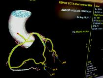 An example of GE Healthcare's software automation, which auto identifies, labels, extracts into a 3-D model and center lines all the coronary vessels.