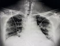 A chest X-ray of a U.S. COVID-19 positive patient showing pneumonia, which appear as hazy, smoky ground glass lesions along the lower chest walls. Photo from radiologist John Kim, M.D.