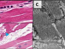 Damage from COVID to myocardial cells in the hearts of patients who died of the virus. COVID-19 kills cardiomyocytes in random patterns. This may be the cause of some heart issues during COVID infection, but the long term consequences are not yet known in long-hauler COVID patients. Read more. Image from Circulation.