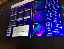 One of the newer technologies discussed in sessions at ASNC 2019 is the use of quantitative myocardial perfusion (QMP) flow reserve to enhance PET imaging. This is an example of software to perform this from the vendor Cardiovascular Imaging Technologies on the expo floor. Flow reserve can help show the severity of the ischemia detected on a PET scan and help show its cause and course of therapy. It takes the stress QMP divided by the rest scan QMP to offer a ratio for the flow reserve. #ASNC