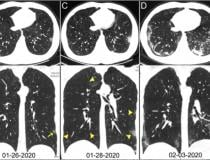 COVID pneumonia in the lungs from CT scans from China. Image courtesy of Radiology