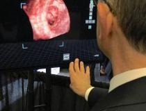 "This was a really interesting a href=""https://www.dicardiology.com/content/echopixel-introduces-3-d-holographic-intraoperative-software""> new technology shown by EchoPixel at TCT 2019 creates live holograms in the cath lab for procedural guidance.</a> It takes live transesophageal echo (TEE) in the cath lab and projects the image as true 3-D holograms. The special display screen does not require the user to wear 3-D glasses. The interventional cardiologist can use hand movements and a fo#TCT2019 #TCT #TCT19"