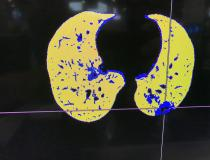 COVID-19 pneumonia in blue and normal lung tissue in yellow seen in a CT reconstruction software developed by Fujifilm on its Synapse 7X enterprise imaging system at the Healthcare Information Management Systems Society (HIMSS) 2021 meeting. The software separates are areas of diseased tissue based on the density determined from the CT Hounsfield units. #COVID19
