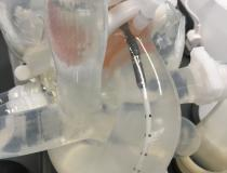 An Impella simulator, with is composed of a beating heart, aorta and femoral vessels to enable insertion and delivery of a percutaneous pump catheter. The operator can change the pump settings on the Impella control console and see the impact hemodynamically, and how the device is working into the transparent model of the anatomy.