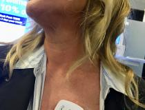 #TCT2019 #TCT #TCT19 This is the Biotel remote telemetry cardiac monitor. The simple adhesive patch sticks to the patient's chest and the patient carries a cell phone device that relays the data in real-time. An algorithm monitors the data and issues alerts to physicians if measures fall outside set parameters. The monitor was featured in a University of Colorado study presented at TCT where it was used to remotely monitor TAVR patients who did not have a pacemaker.