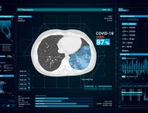 Artificial intelligence (AI) radiology company InterVision has modified its CT Pneumonia software to help auto detect COVID-19 on computed tomography scans. The technology was put into use in China early on in the epidemic to help screen large volumes of patients and flag those with radioman symptoms for stat reads. #SARScov2