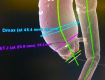 This is an unusual case of a CT scan transcatheter aortic valve replacement (TAVR) pre-planning exam, where the patient has an aortic arch aneurism and a kink in the aorta. This was a demonstration case shown by GE Healthcare for its automated TAVR planning software, which automates key measurements needed for valve sizing and assessment of the transcatheter access routes. #SCCT #SCCT19 #SCCT2019
