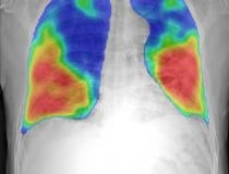 COVID-19 pneumonia color coded in red and yellow by an automated artificial intelligence (AI) analyses tool to prescreen chest X-ray images from the new Thirona and Delft Imaging CAD4COVID detection software. It is intended to support healthcare manage COVID-19 cases. The tool will help triage COVID-19 cases and indicate the affected lung tissue. The software is being made available free-of-charge in support of the crisis.