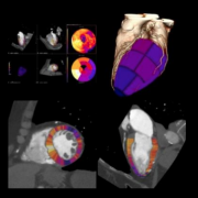 CT myocardial perfusion