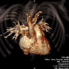 Cardiac CT image 3D reconstruction of the heart