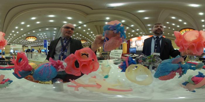 3D printing is being used increasingly in structural heart planning in cardiology. Examples of 3D printed heart models displayed by Vital Images at SCCT 2018. #SCCT2018. Dave Fornell