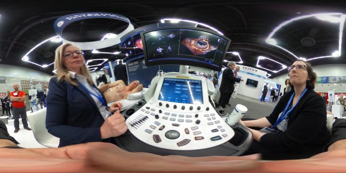 360 degree image of a cardiac ultrasound mitral valve exam on a GE Healthcare Vivid E95 system at the American Society of Echocardiography (ASE).