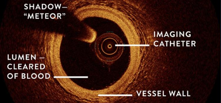 Explanation of optical coherence imaging (OCT) coronary imaging.