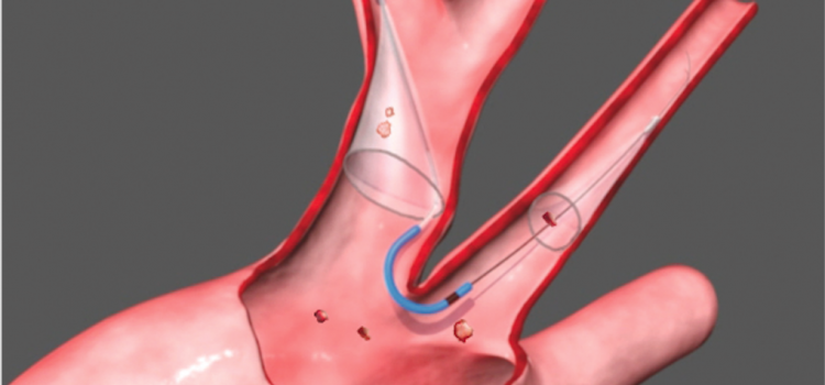 Claret's FDA-cleared Sentinel Cerebral Embolic Protection System for TAVR will expand Boston Scientific's structural heart portfolio. It collects emboli knocked loose that would otherwise lodge in the brain and potentially cause a stroke.