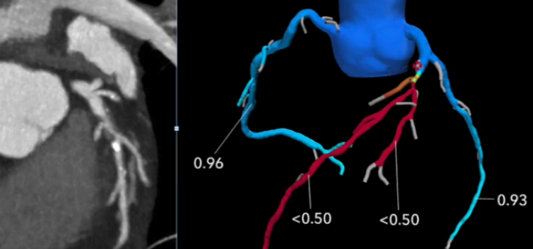 An example of an intermediate anatomical coronary lesion on CT compared to FFR-CT, showing the patient does have a significant, flow-limiting lesions that requires percutaneous coronary intervention (PCI). Image courtesy of Kavitha Chinnaiyan, William Beaumont Hospital.