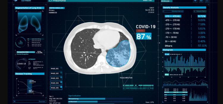 #COVID19 #Coronavirus #2019-nCoV