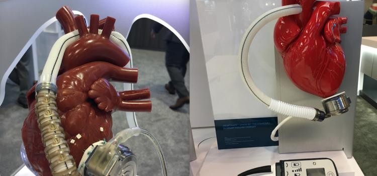 Artificial Heart   DAIC