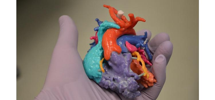 Materialise Announces Start of Pre-Market Phase for Mitral Valve Planning